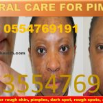Forever Living Products For Pimples