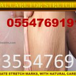 Forever Living Products for Stretch Marks